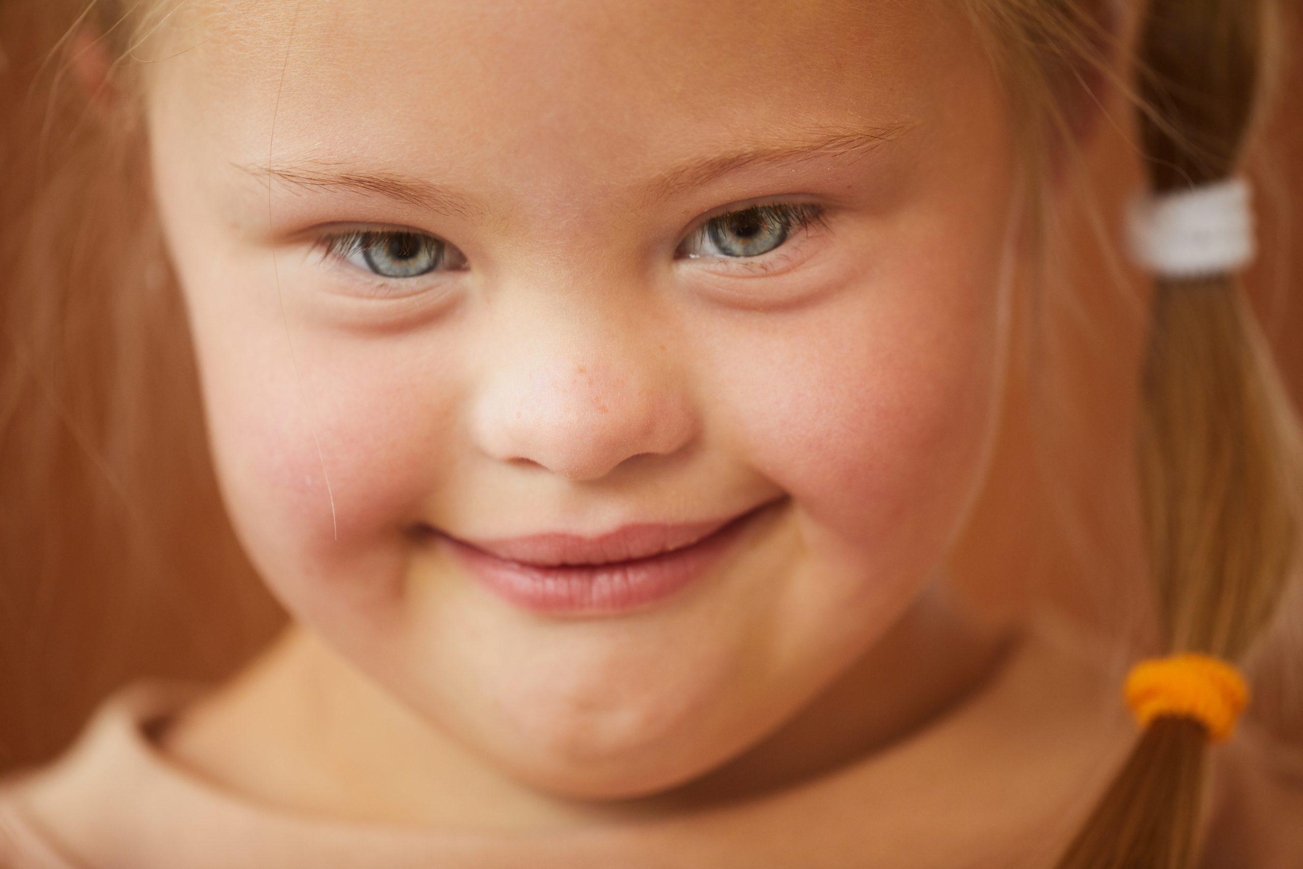 Otizm Spektrum Bozukluğu ve Bu Tanı Grubundaki Bireylerin Ebeveynleri Gözünden Değerlendirme